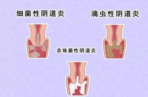 兴义人民医院妇科治疗阴道炎