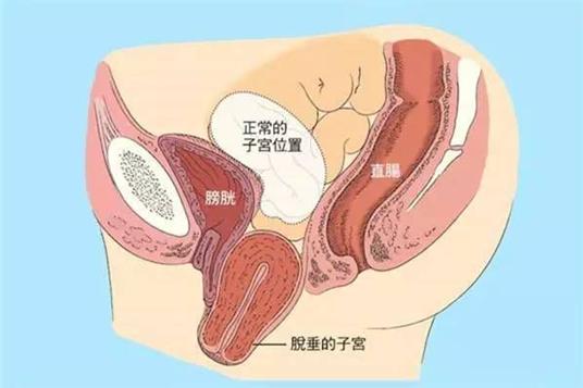 宣威女性子宫脱垂的症状有哪些