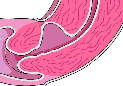 宣威女性子宫有疤痕可以做无痛打胎吗