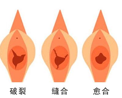 什么会影响宣威妇女做处女膜修复的效果