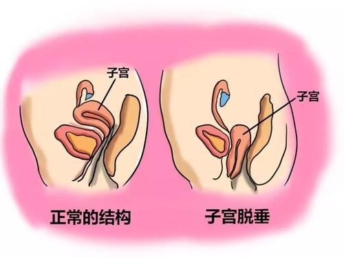 毕节妇女子宫萎缩会有什么症状