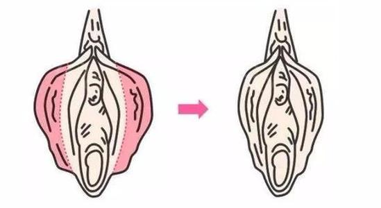 兴义妇女做了处女膜手术后需要注意什么