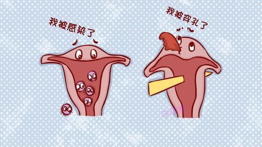 哪些术前准备能减少兴义佳和医院打胎的伤害