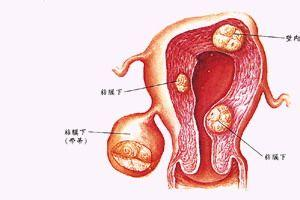 兴义妇女怎样控制子宫肌瘤增长
